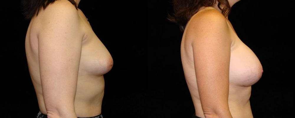 Breast Augmentation Before & After Patient #956