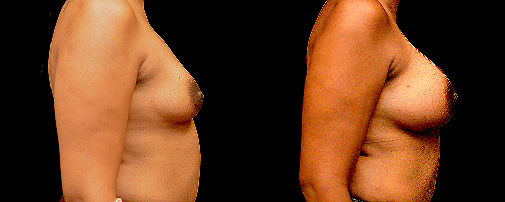 Breast Augmentation Before & After Patient #1007