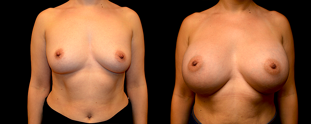 Breast Augmentation Before & After Patient #1003