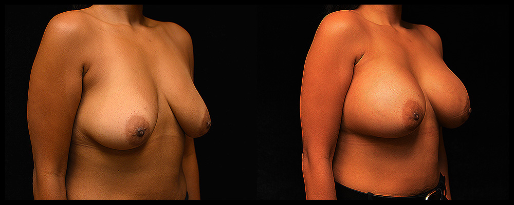 Breast Augmentation Before & After Patient #1001