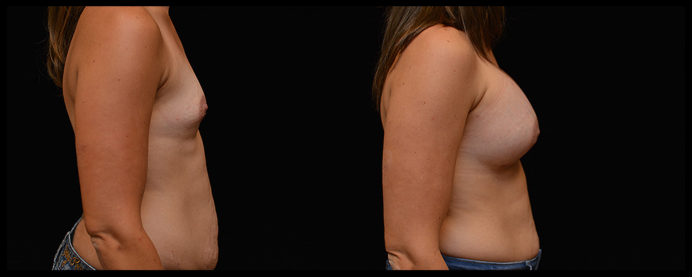 Breast Augmentation Before & After Patient #999