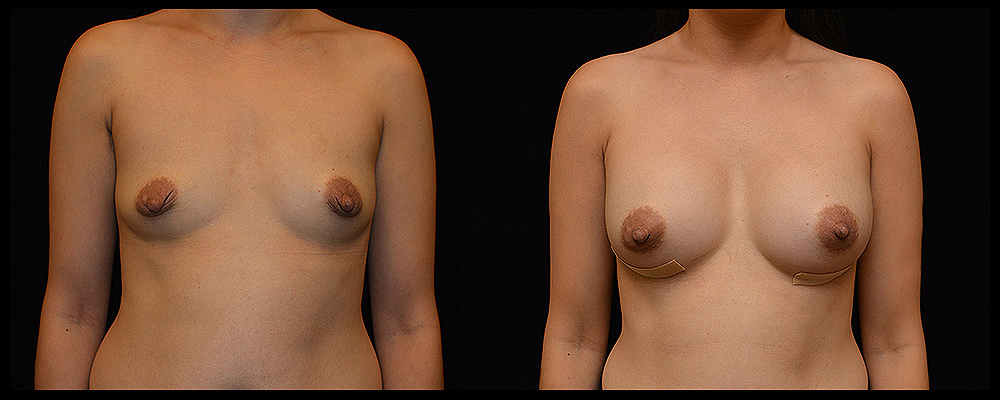 Breast Augmentation Before & After Patient #994