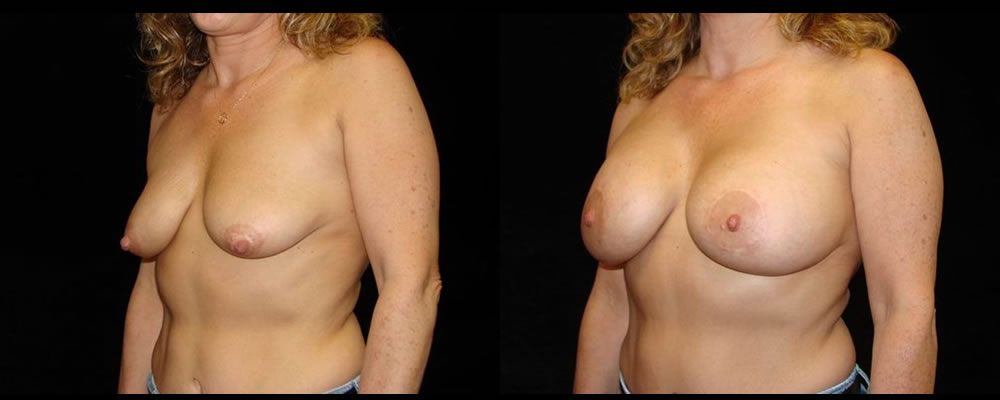 Breast Augmentation with Lift Before & After Patient #1048