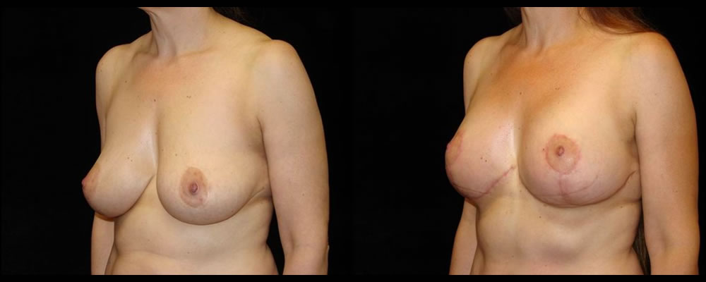 Breast Lift Before & After Patient #1052