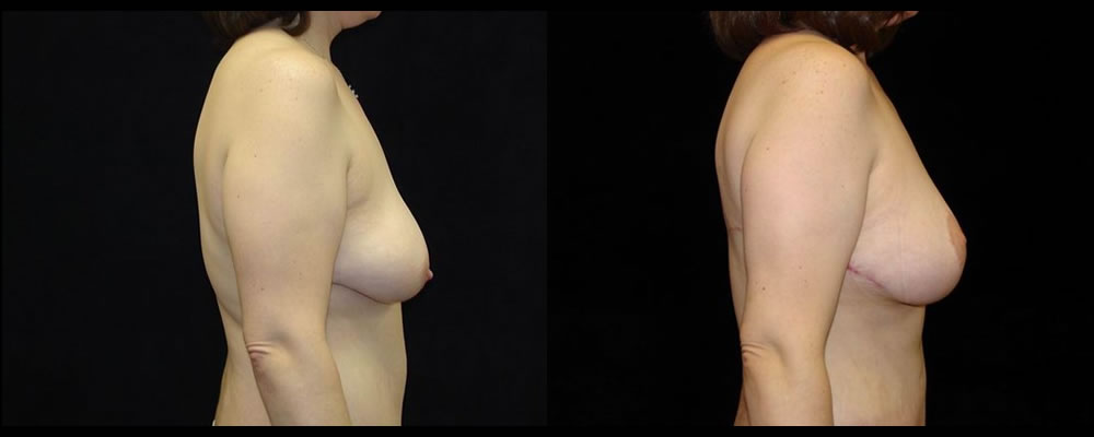 Breast Lift Before & After Patient #1056