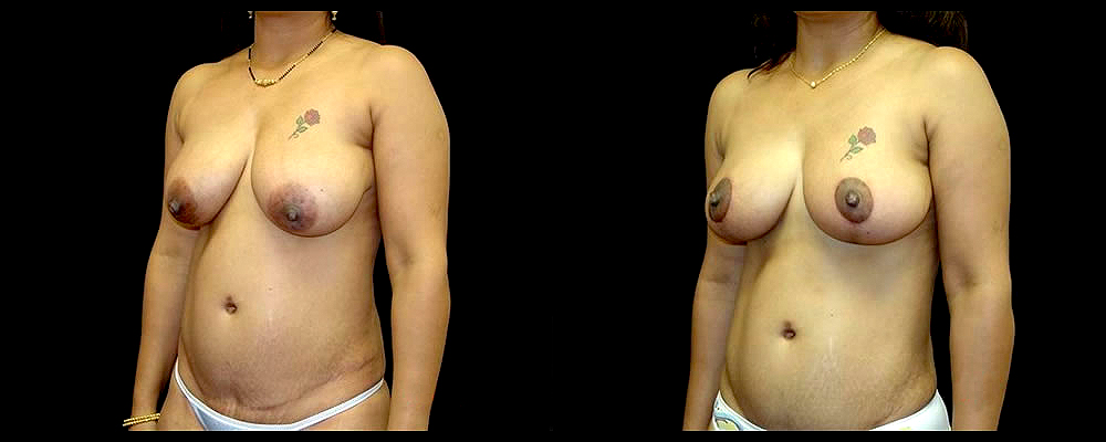 Breast Lift Before & After Patient #1060