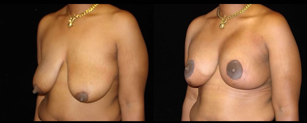 Breast Augmentation with Lift Before & After Patient #1044