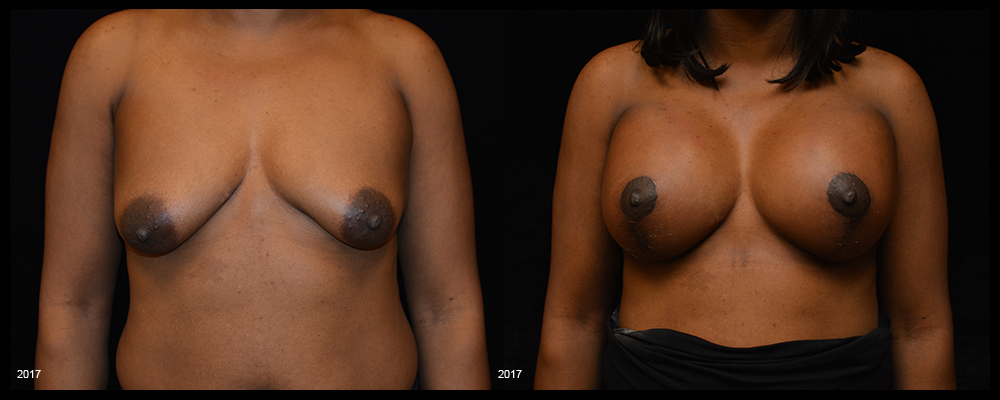 Breast Augmentation with Lift Before & After Patient #1019