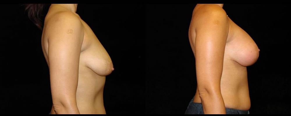 Breast Augmentation with Lift Before & After Patient #1040