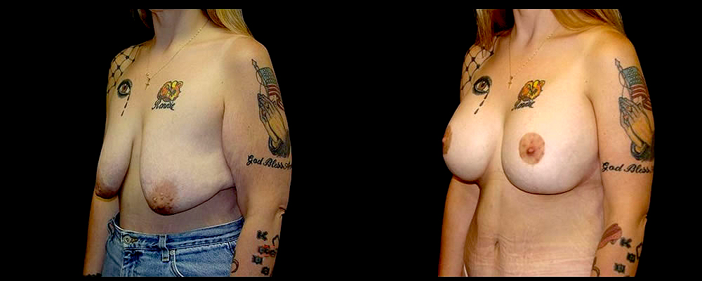 Breast Augmentation with Lift Before & After Patient #1036