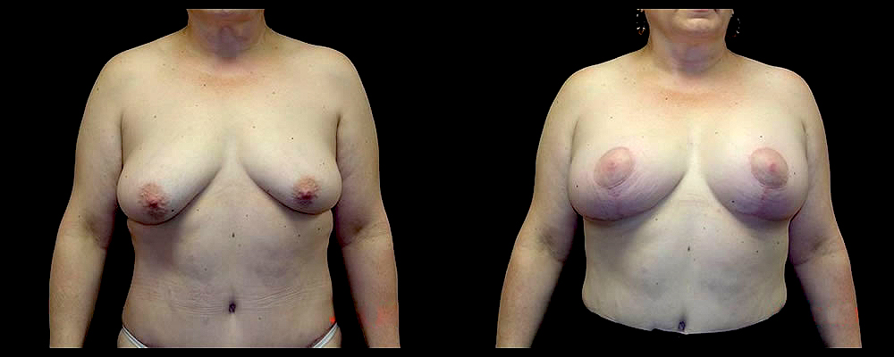 Breast Augmentation with Lift Before & After Patient #1033