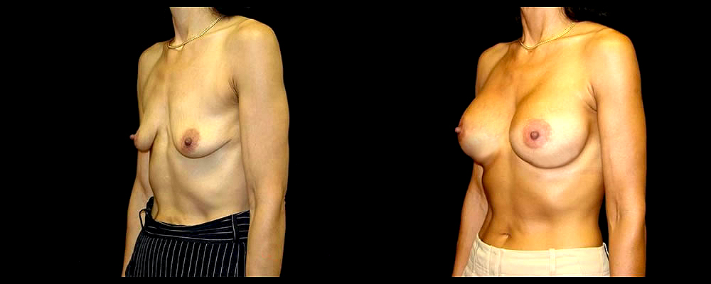 Breast Augmentation with Lift Before & After Patient #1029