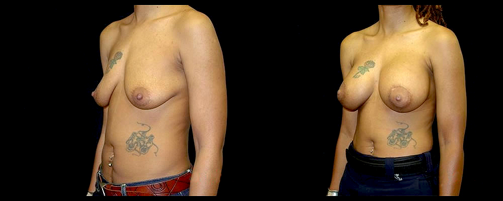 Breast Augmentation with Lift Before & After Patient #1025
