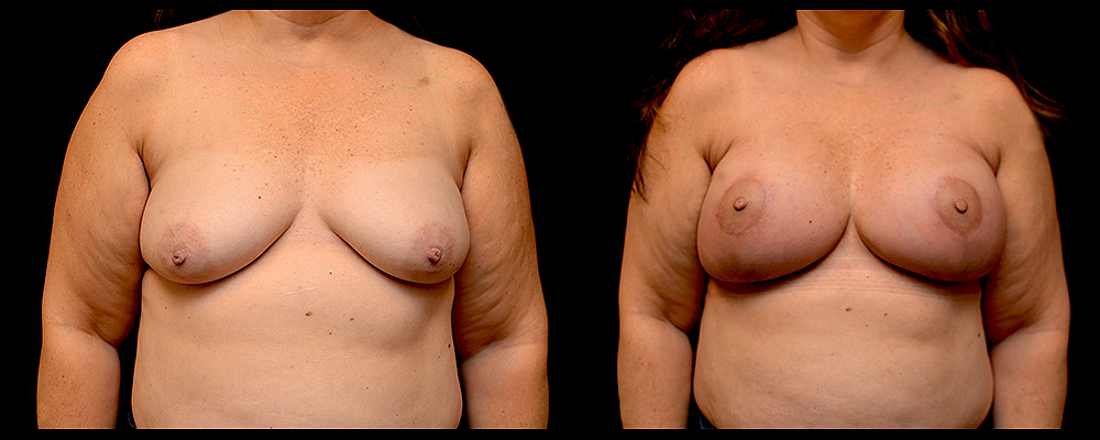 Breast Augmentation with Lift Before & After Patient #1021
