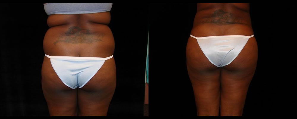 Brazilian Butt Lift Before & After Patient #779