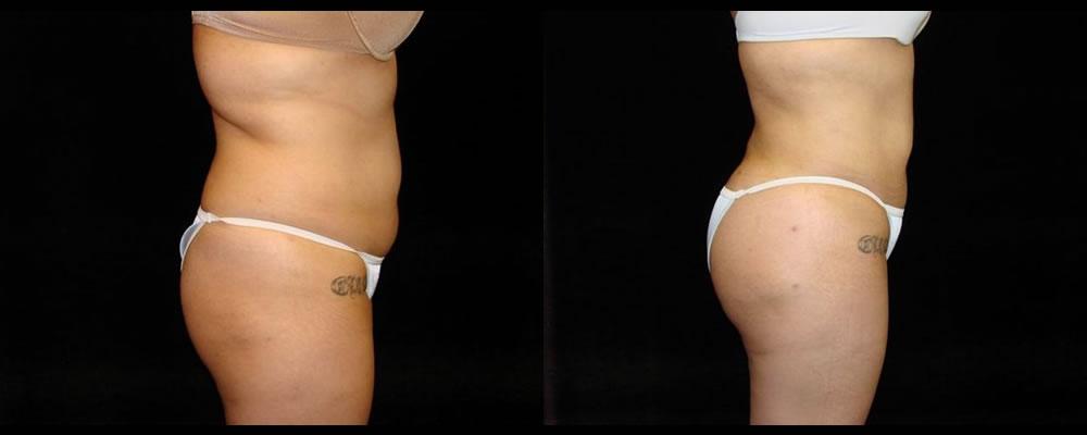 Brazilian Butt Lift Before & After Patient #743