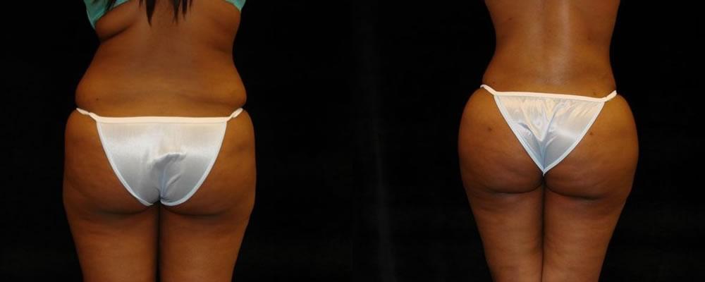 Brazilian Butt Lift Before & After Patient #731