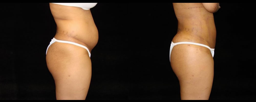 Brazilian Butt Lift Before & After Patient #724