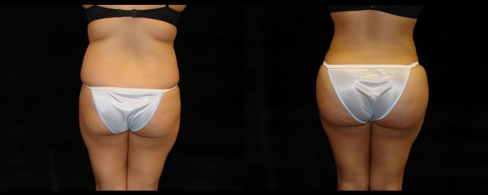 Brazilian Butt Lift Before & After Patient #716