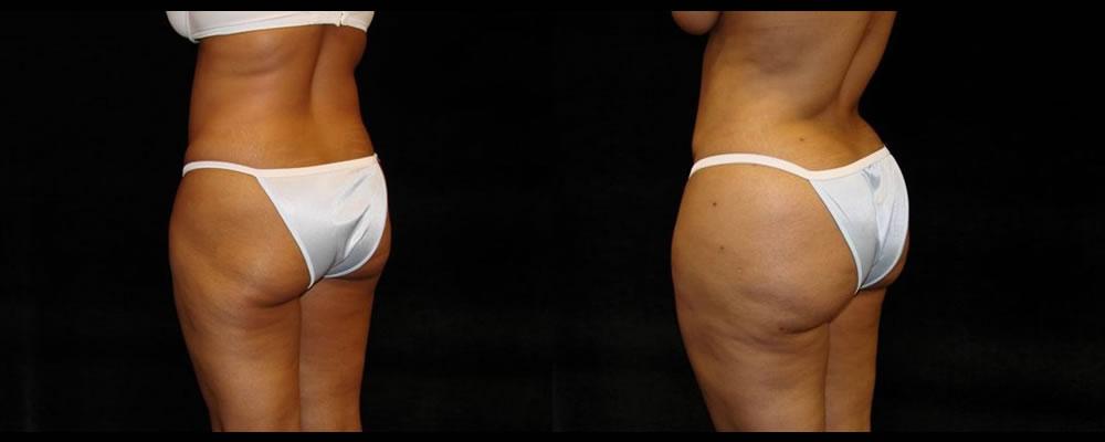 Brazilian Butt Lift Before & After Patient #709