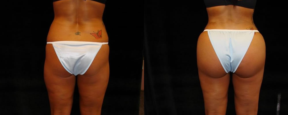 Brazilian Butt Lift Before & After Patient #775