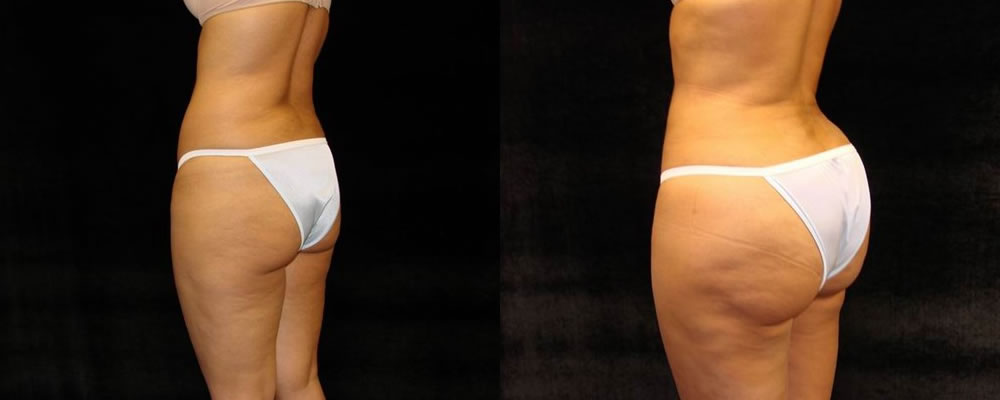 Brazilian Butt Lift Before & After Patient #705