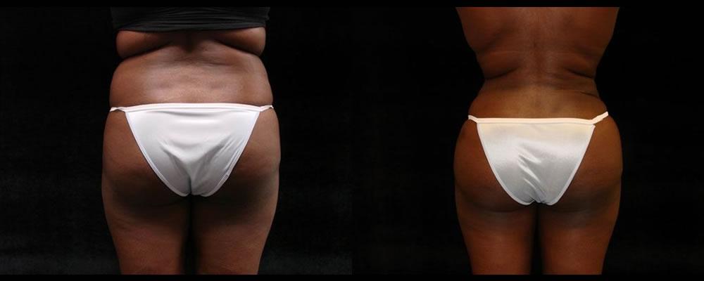 Brazilian Butt Lift Before & After Patient #697