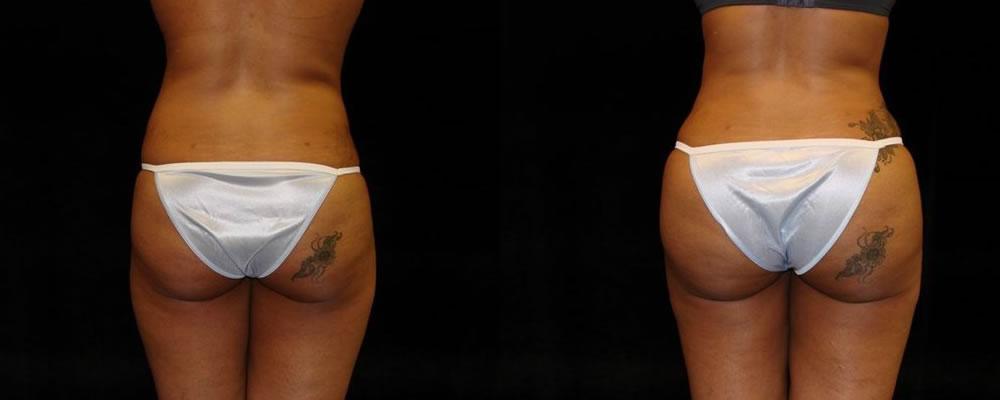 Brazilian Butt Lift Before & After Patient #690