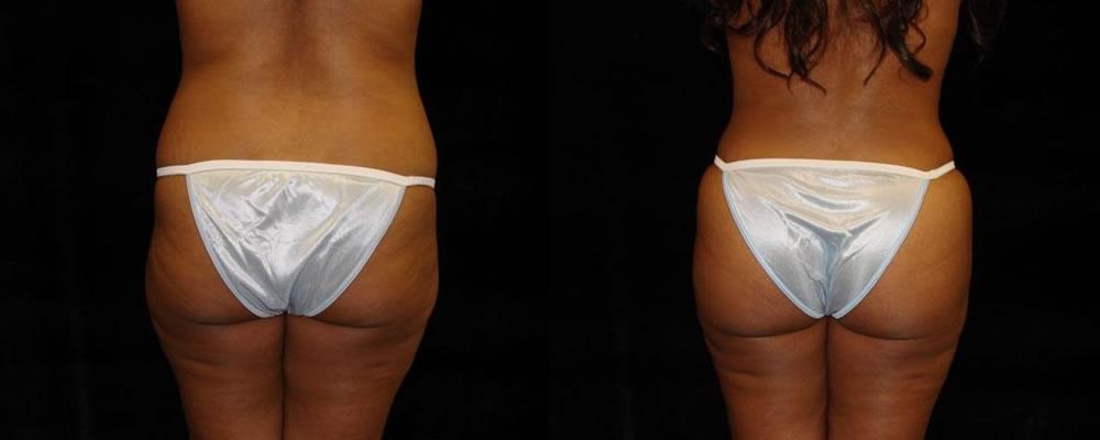 Brazilian Butt Lift Before & After Patient #686