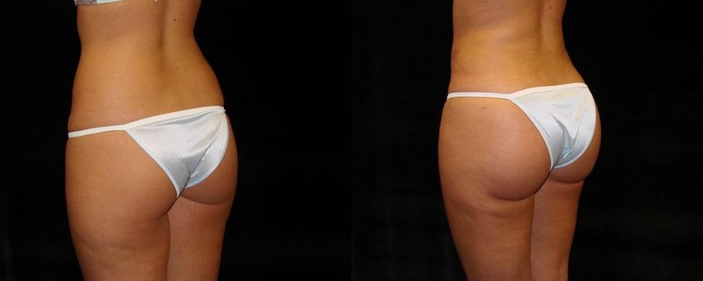Brazilian Butt Lift Before & After Patient #682