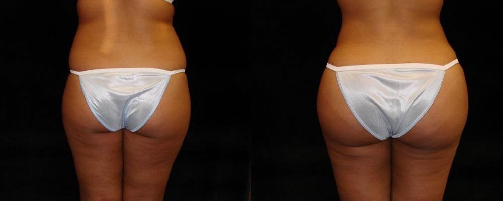 Brazilian Butt Lift Before & After Patient #678