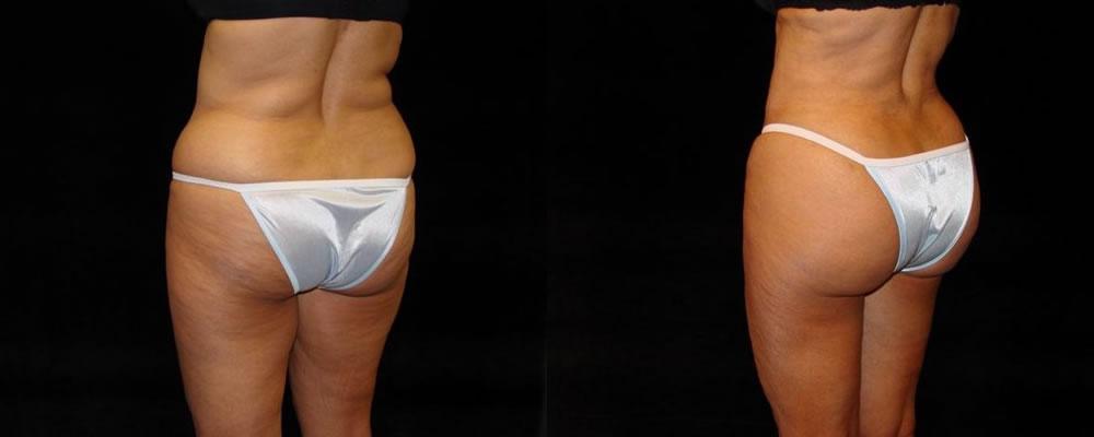 Brazilian Butt Lift Before & After Patient #674