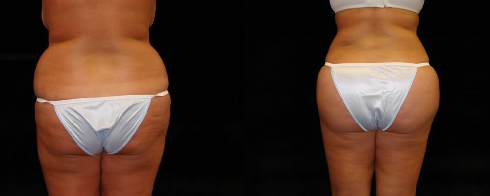 Brazilian Butt Lift Before & After Patient #670