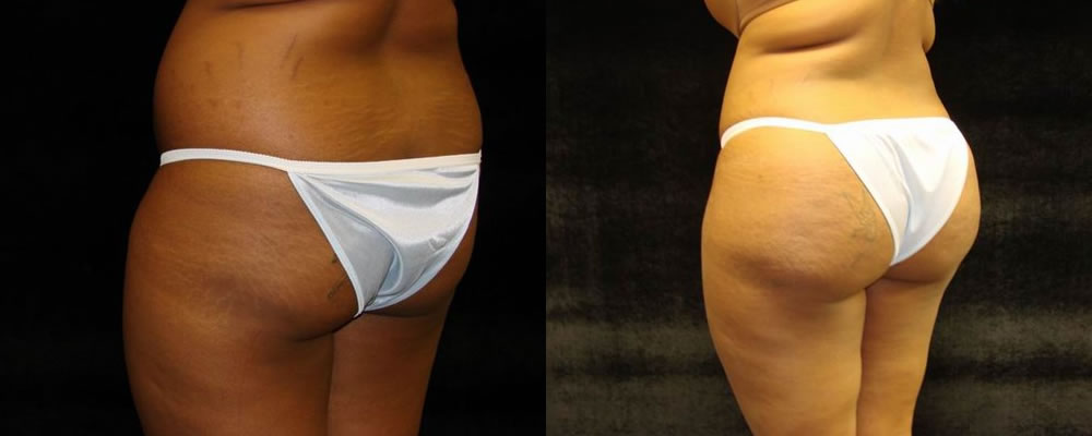 Brazilian Butt Lift Before & After Patient #662