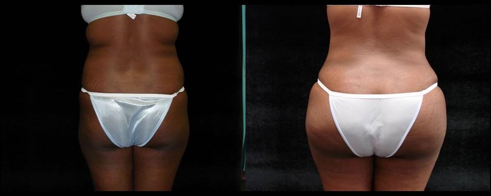Brazilian Butt Lift Before & After Patient #646