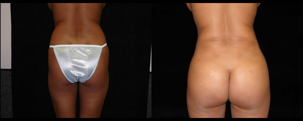 Brazilian Butt Lift Before & After Patient #642