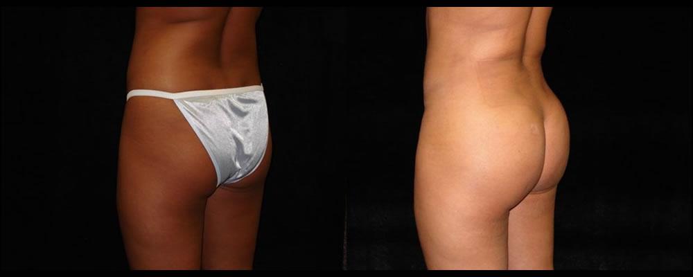 Brazilian Butt Lift Before & After Patient #642