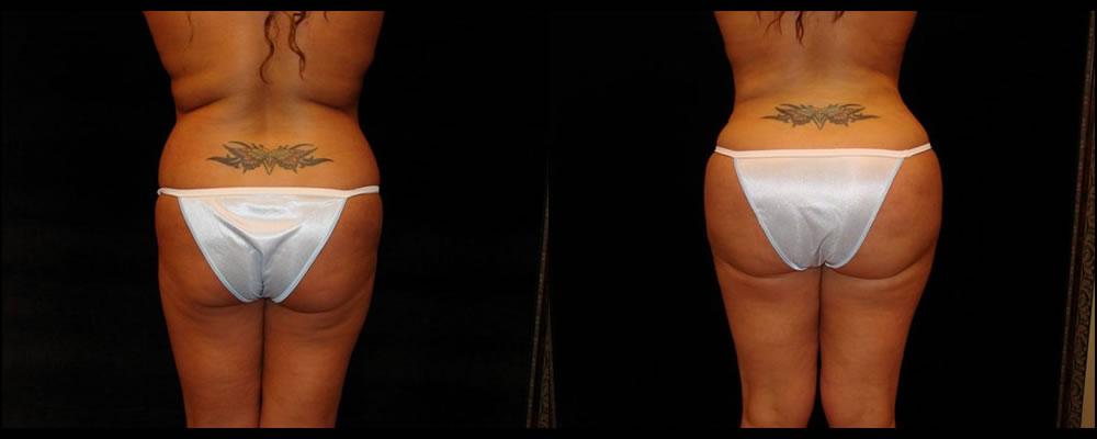 Brazilian Butt Lift Before & After Patient #630