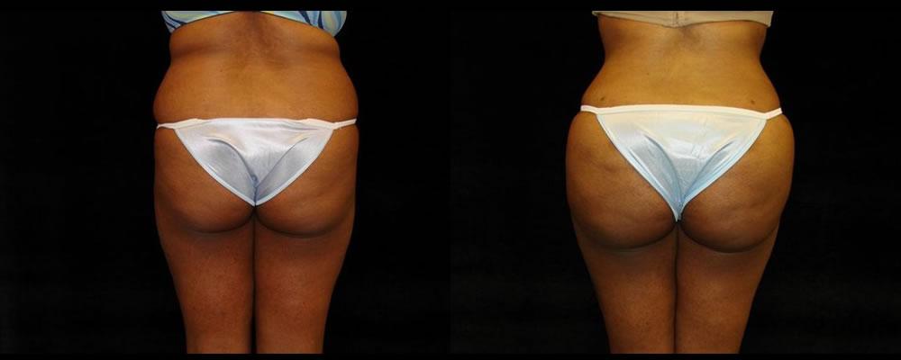 Brazilian Butt Lift Before & After Patient #764