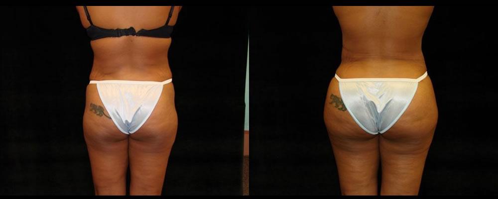 Brazilian Butt Lift Before & After Patient #759
