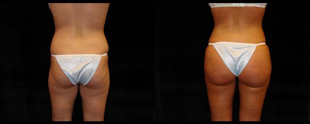 Brazilian Butt Lift Before & After Patient #751
