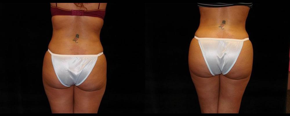 Brazilian Butt Lift Before & After Patient #747