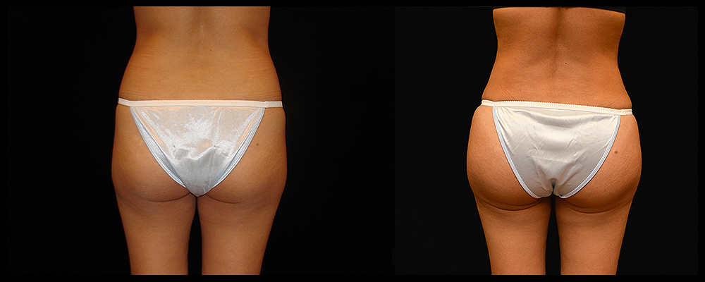 Brazilian Butt Lift Before & After Patient #620