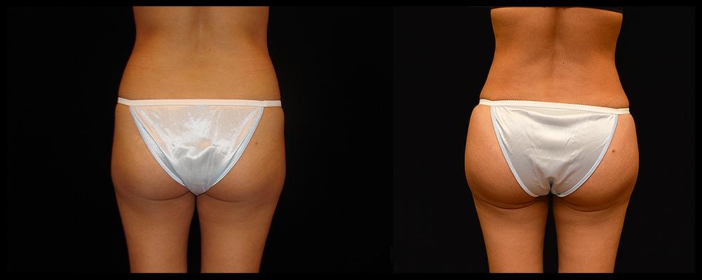 Brazilian Butt Lift Before & After Patient #620