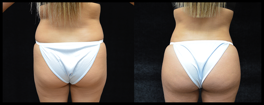 Brazilian Butt Lift Before & After Patient #616