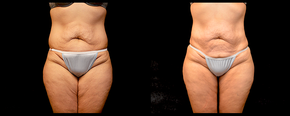 Brazilian Butt Lift Before & After Patient #612