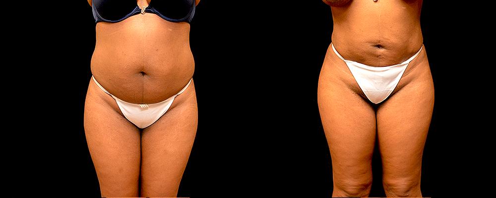 Brazilian Butt Lift Before & After Patient #785