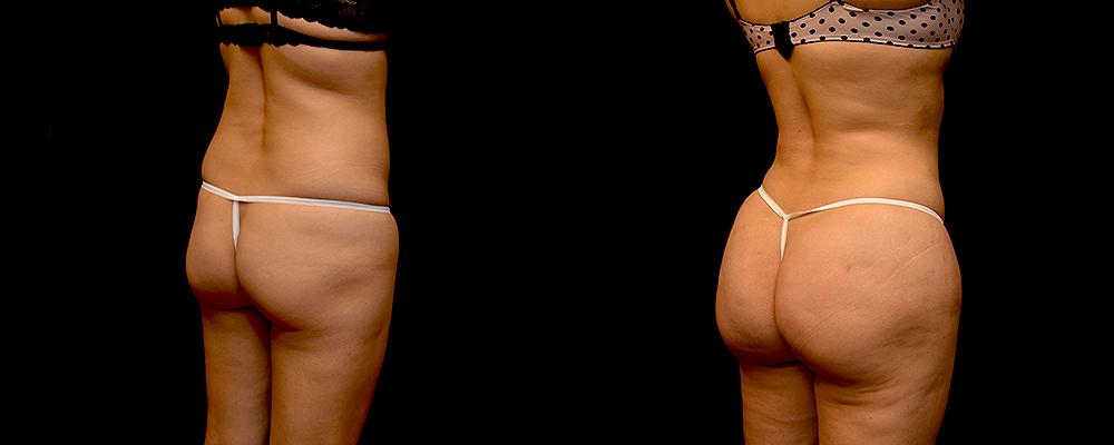 Brazilian Butt Lift Before & After Patient #781
