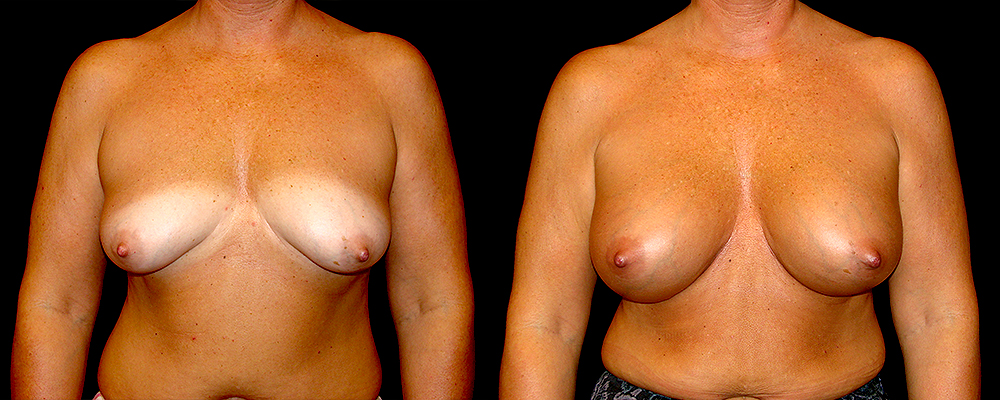 Breast Augmentation Before & After Patient #801
