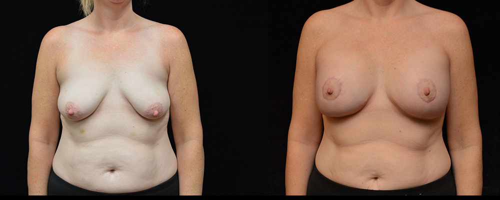 Breast Augmentation with Lift Before & After Patient #1017